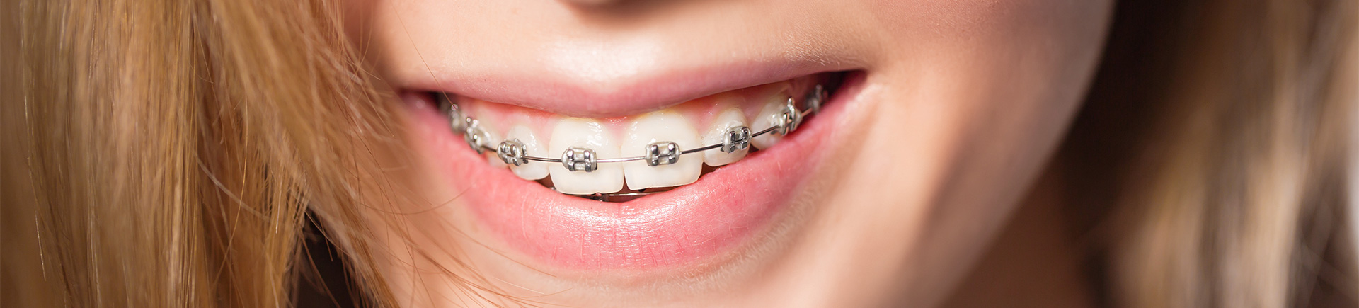 Why an Orthodontist? Milton, GA