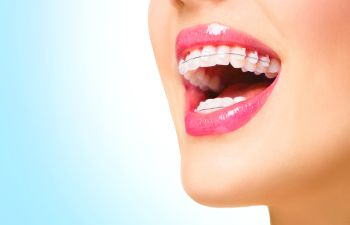 Orthodontics Alpharetta GA